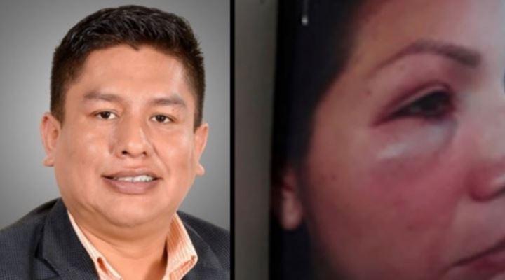 Expareja de diputado Cabrera desiste de su denuncia y pide archivo del caso