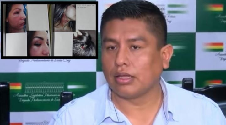 Diputado Cabrera logra que se extinga su proceso después de conciliar con su expareja