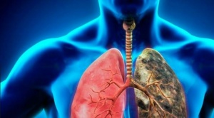 El cáncer mata a 10 millones de personas al año en el mundo, según la OMS