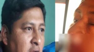 Golpean a representante de Adepcoca en Los Yungas; acusan al MAS por las agresiones
