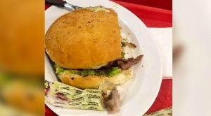 Policía señala que dedo encontrado en una hamburguesa pertenecía a un empleado del local