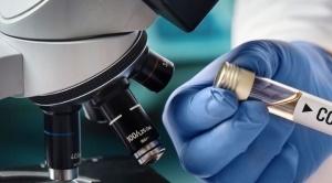 En Bolivia 4 casos de Covid-19 se confirmaron después de la muerte de los pacientes